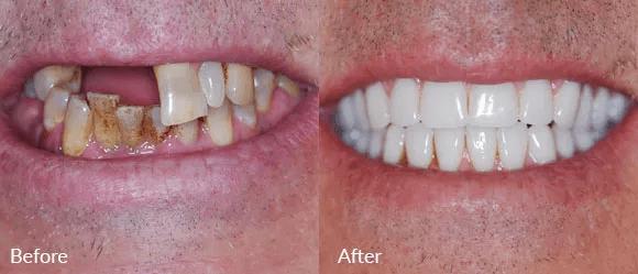 Sedation Dentistry Austin